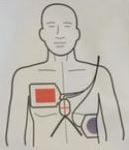 ZOLL CPR Stat-Padz électrodes