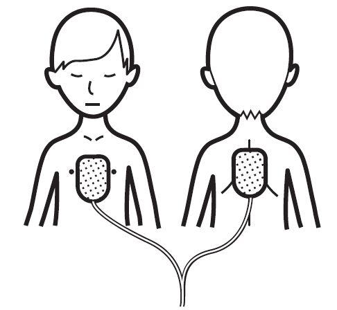 Defibtech Lifeline électrodes pédiatriques